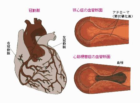 心筋梗塞と心不全の違い