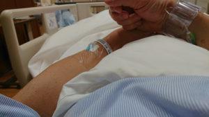 心筋梗塞 手術後の写真